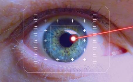 laser-ojo